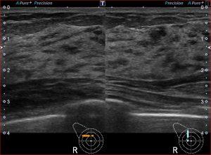 乳腺超音波画像